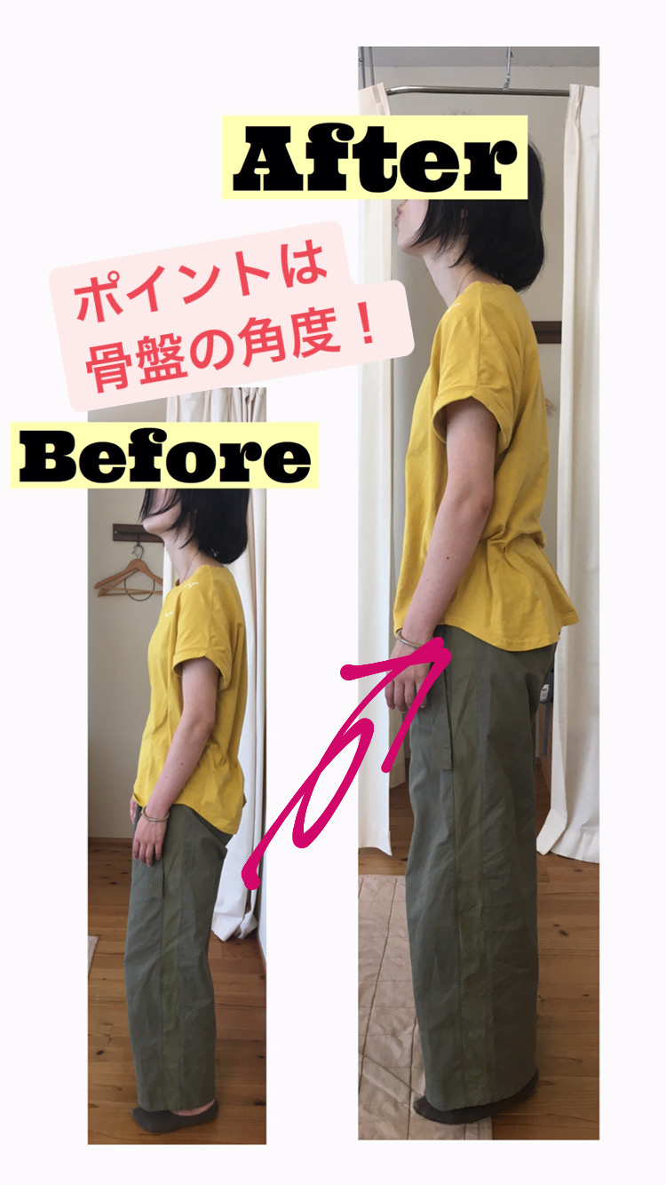 骨盤の角度を変えることで改善する姿勢